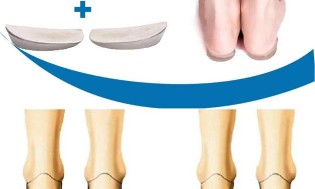 Why Orthopedic Insoles Are The Keys To Your Health?