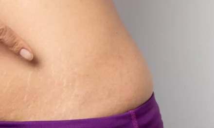 6 Simple Ways To Reduce The Appearance Of Stretch Marks